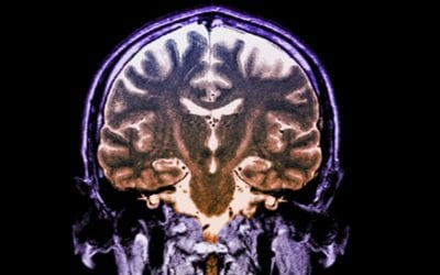 Drug Combination Slows Progression Of ALS And Could Mark 'New Era' In Treatment